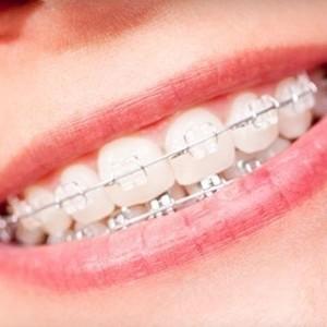 Ortodoncia Bracket Cerámica